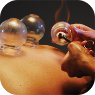 Cupping Therapy's Comeback